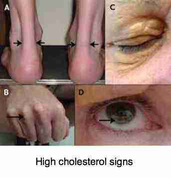 High Cholesterol Eye Symptoms
