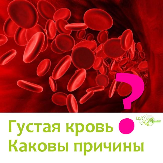 Густая кровь. Причины густой крови?...    Кровь – это красная жидкость, состоящая из плазмы, эритроцитов, тромбоцитов и лейкоцитов. Кровь выполняет как транспортную функцию – переносит кислород и углекислый газ, так и защитную функцию – происходит образование кровяных и тканевых барьеров против инородных веществ, микроорганизмов.    Признаками загущения крови являются сонливость, быстрая утомляемость, слабость, ухудшение памяти и т.п.    Причины густой крови:  ✔ Ферментативная…