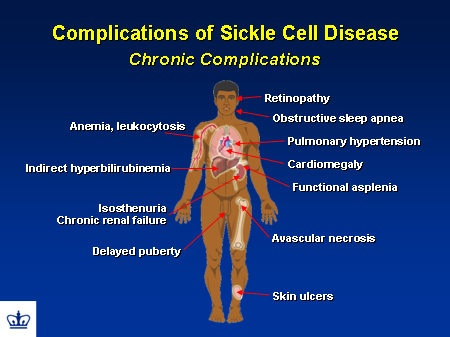 treatment and effects of sickle cell anemia The most common signs and symptoms of scd are associated with low red  blood cells (anemia) and pain.