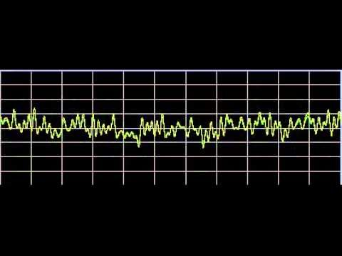▶ Sleep Apnea - Rife Frequencies - YouTube