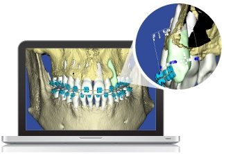 Suresmile 6.0 Software Reveals Position of Teeth in the Bone. Revolutionary!