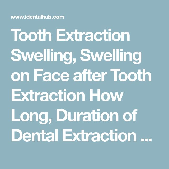 Tooth Extraction Swelling, Swelling on Face after Tooth Extraction How Long, Duration of Dental Extraction Swelling