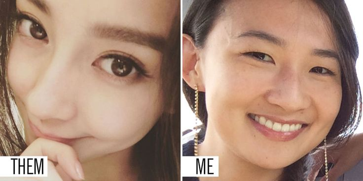 My Asian Mom Told Me to Get Plastic Surgery in High School