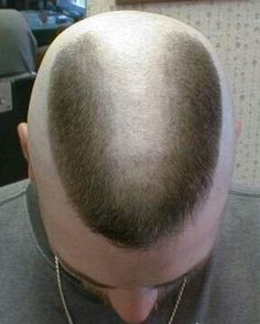 Horseshoe Flattop Flattop Pinterest Haircuts And