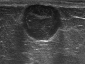 Sebaceous cyst of breast -Ultrasound cases