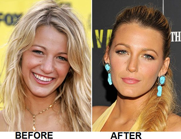 Blake Lively nose job and plastic surgery before and after pictures