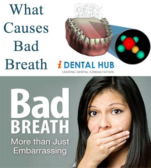 Wha t causes Bad Breath, Bad breath may get the patient suffering from it in a very embarrassing situation. Due to this embarrassing position persons having bad breath hesitate to talk and laugh freely.