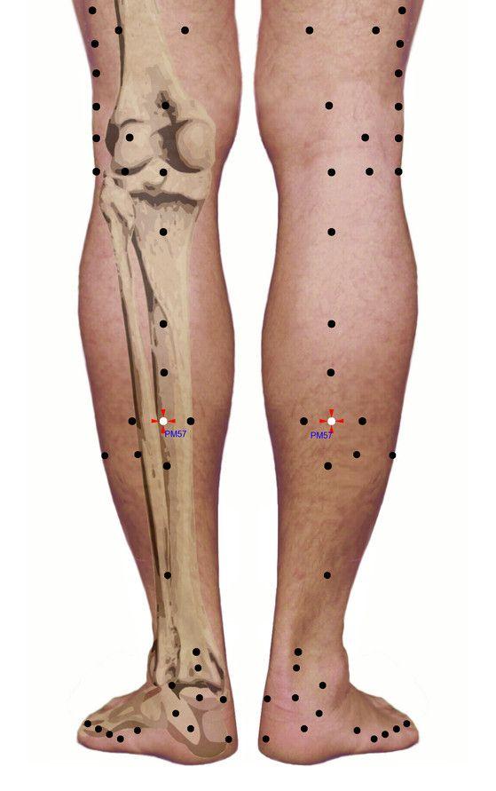 Punkty stymulacji metodą elektropunktury i akupunktury dla schorzenia: Stwardnienie rozsiane - zaburzenia kończyn dolnych