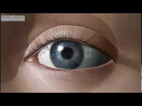 Болезни зрения. Заболевание глазная Глаукома. Причины возникновения и си...