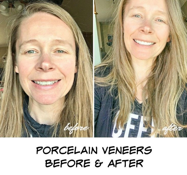 Porcelain Veneers Before and After Are They Worth It