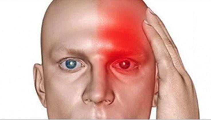 Acidente vascular cerebral (AVC), também chamado de derrame, é uma das principais causas de morte no mundo. Ele se divide em dois tipos: 1. Acidente vascular isquêmico – falta de circulação numa área do cérebro devido à obstrução de uma ou mais artérias por ateromas, trombose ou embolia. Ocorre em pessoas mais velhas como consequência …