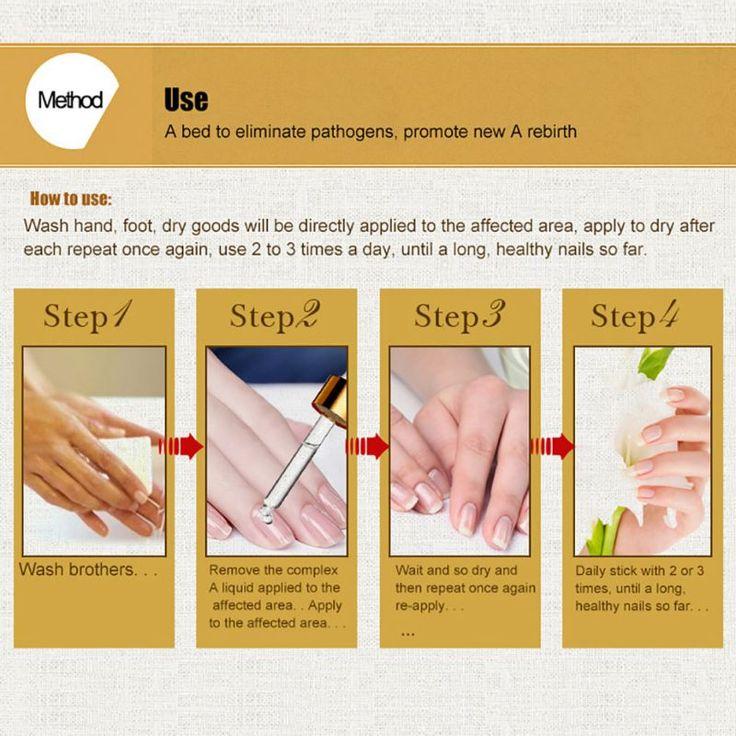 3pcs New Fungal Nail Treatment Essence Nail And Foot Whitening Toe Nail Fungus Removal Feet Care. Click visit to buy #NailTreatments