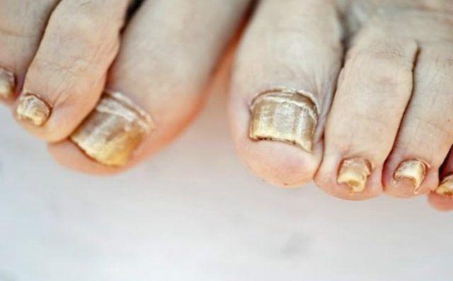 La infección más común de los pies son los hongos en las uñas y cuando aparece suele correrse p...