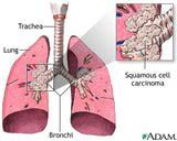 Squamous Cell Carcinoma of the Lungs