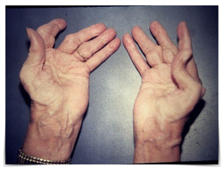 Easy Ways to Treat Arthritis