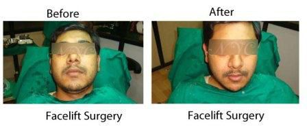 TheNewYouClinic offers Best Hair Transplantation in Bangalore, India.  http://www.thenewyouclinic.com/
