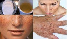 Esta receita vai eliminar manchas e imperfeições do seu rosto e mãos rapidamente