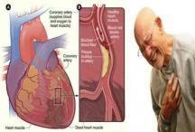 Penderita Penyakit Jantung Koroner Sebaiknya Dengarkan Musik, Ini Alasannya! | Majalah Dan Artikel Twisted