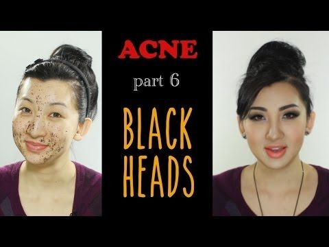 Acne: How to properly extract and prevent Blackheads - YouTube