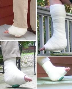 Walking Cast Rubber Orthopedic Heel Leg Cast It Cast