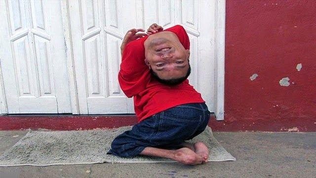 Η.W.N.: Μαθήματα ζωής από τον άνδρα που γεννήθηκε με το κεφάλι του ανάποδα !