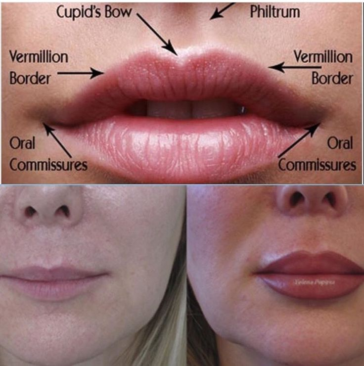 Lip Augmentation at Laser Clinique   Lip Augmentation in ...   736 x 740 jpeg 65kB