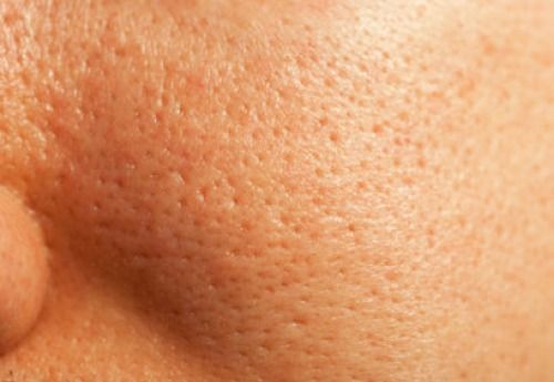 Natural Treatments for Enlarged Pores - Step to Health