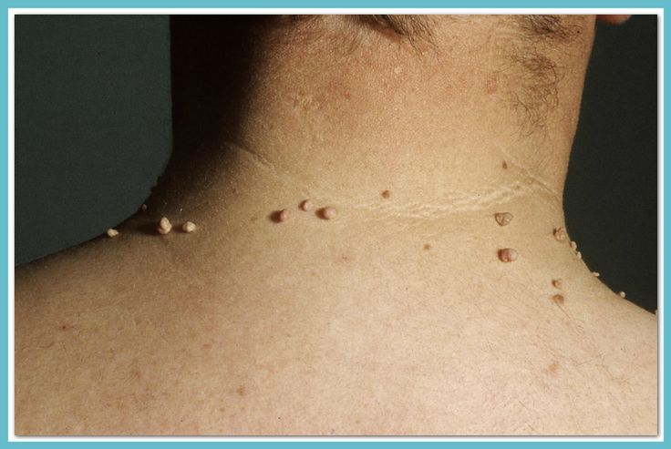 Want to get rid of unsighty #skintags? To treat common #skin conditions, consult an expert@ bit.ly/1O1Acvx  #ImperialHealth #Imperial #skincare #health #London