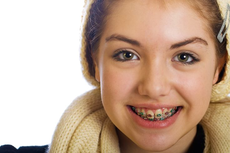 Pierwszy aparat na zęby? http://www.ortodoncja.cieslik.eu/leczenie/leczenie-dzieci/