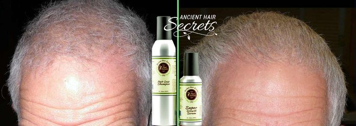 Hair regrowth products definitely change your personality.