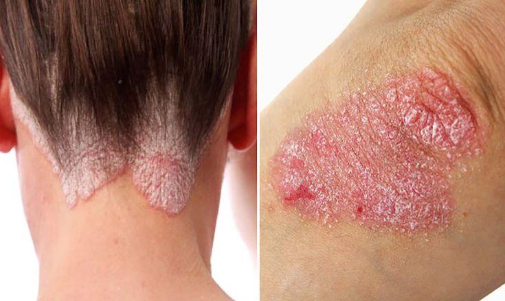 Contrar credintelor populare, psoriazisul este tratabil cu ajutorul remediilor naturale. Desi multi oameni folosesc termenul de eczema, dermatita si psoriazis interschimbabil atunci cand se refera la orice boala cronica inflamtorie, psoriazisul este o problema de piele complet diferita. Este caracterizata prin piele uscata si pete rosii cu granite distincte intre pielea normala. Este adesea insotitaRead More