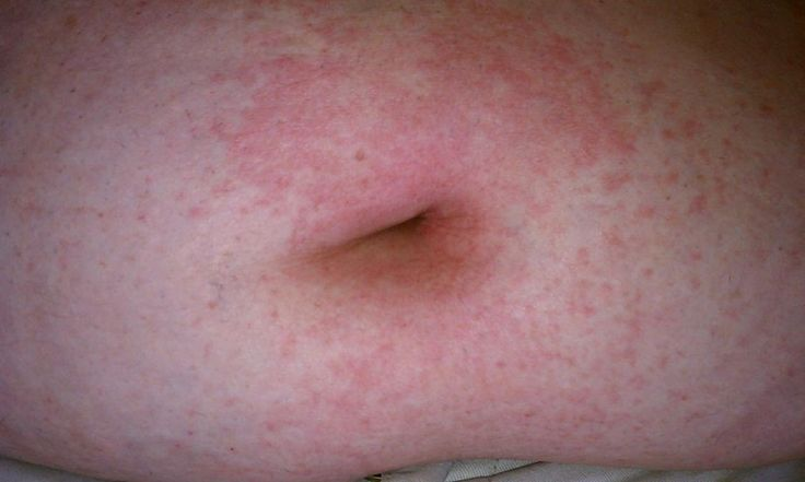 Herpes Zoster Ophthalmicus, Rash On Stomach, Shingles In Pregnancy, Shingles Rash Pictures  http://shingles-cure.good-info.co/  if you´ve just been diagnosed with shingles you should act now!  Herpes zoster, also called shingles, is something that anyone can get if they have had chickenpox in the past.   If untreated it can last for up to a couple of weeks, however it is not recommended Treatment is primarily necessary due to the discomfort and pain the condition causes