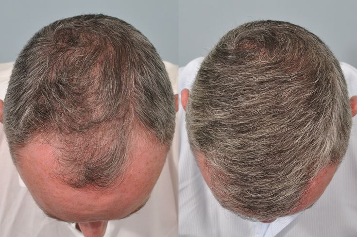 We offer you the best #Hair_Transplant UK at affordable and reasonable costs. For more information give us a call at 07572634049. We are specialist in #hair and #skin related problems.