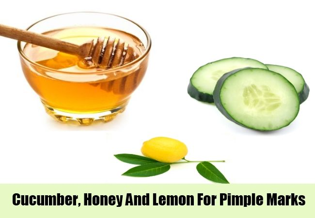 8 Home Remedies For Pimple Marks | http://www.searchhomeremedy.com/home-remedies-for-pimple-marks/