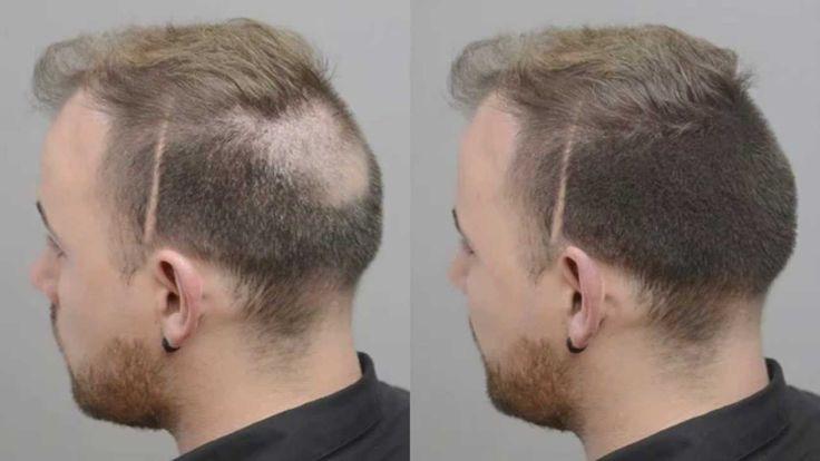 Hair Building Fibers Complement Minoxidil