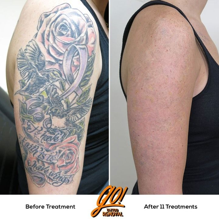 This Half Sleeve Has Been A Long Time In Process But 11 Treatments And We Re 95 Removed And While A Clean Up Was Done Af In 2021 Sleeve Tattoos Laser Tattoo Tattoos
