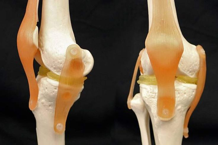 Researchers from Duke University have used a $300 3D printer together with a special hydrogel material to create life-like knee implants. The group has attempted to address the large number of meniscus knee injuries that are notoriously difficult to treat.Damage to the meniscus cartilage is the most common knee injury in the United States and the Duke researchers explains that