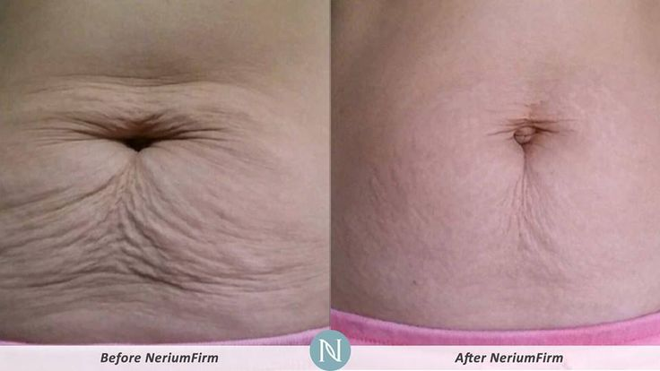 Great Nerium Firm results! Get yours just in time for summer! TaylorMJones.nerium.com