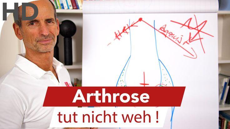 Arthrose tut nicht weh // Schmerzspezialist Liebscher-Bracht Sabine Reimler