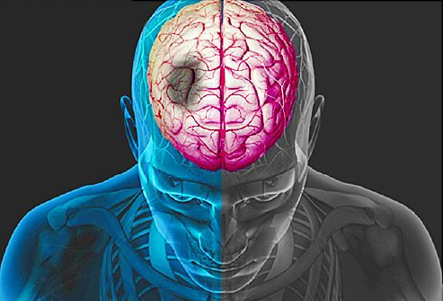 Learn the signs of a stroke from Burbank MRI.