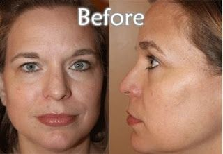 Finally the Secret revealed from http://alternative-botox.blogspot.co.id/2015/10/anti-aging-product-as-botox-alternative.html   Say goodbye to age spots