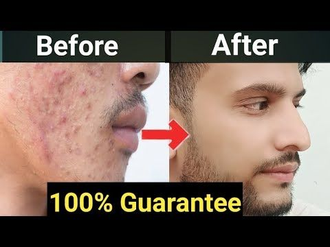 How to Remove pimple from Face|Hindi|How To Get Ri…