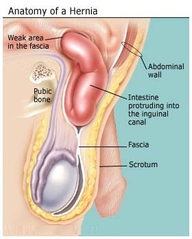 how to fix a hernia naturally