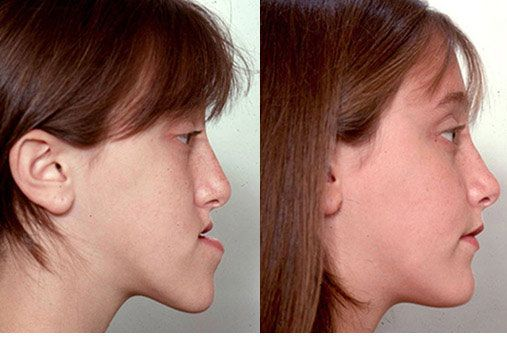 Before (left) and after (right) of a jaw surgery performed at The Carlotti Center for Cosmetic Surgery in Scottsdale, AZ.