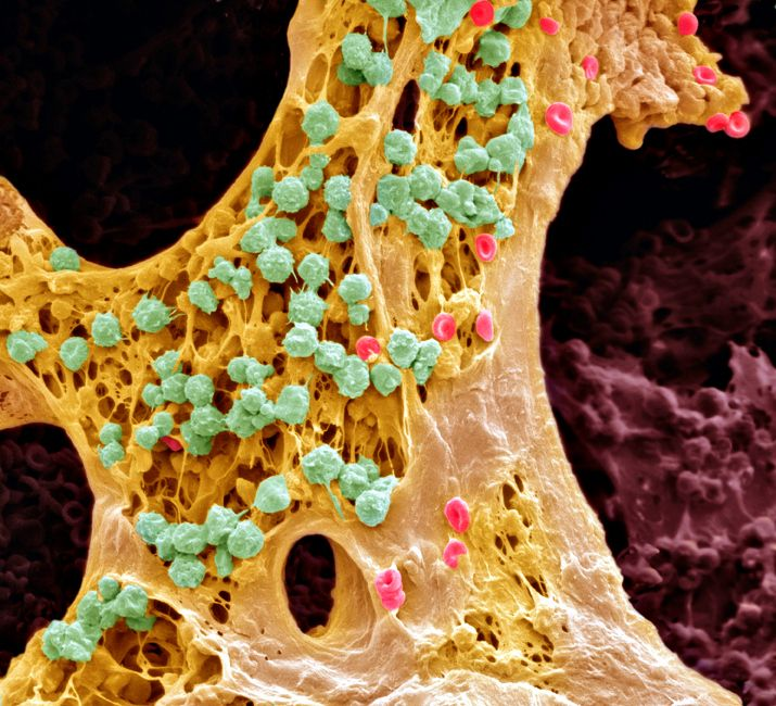jewsee-medicalstudent:  Bone marrow, (SEM). Bone marrow is the site of blood cell production. Differentiating white blood cells (green)