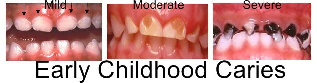 Baby Bottle Tooth Decay, or Early Childhood Caries (EEC) is most common in the upper front teeth from baby spending too much time with a bottle in their mouth containing any liquid with sugar in it, including milk and juice. Please don't put a baby to bed with a bottle in their mouth unless it is water.