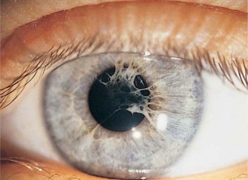 malformalady:     Persistent pupillary membranes. Hyperplasia of the mesoderm of the anterior layer of the iris has caused iris strands to become adherent to the anterior lens surface. The lens is clear, and these are visually insignificant.
