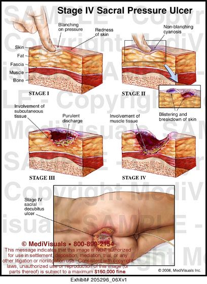 337 best images about systems integumentary on pinterest With best treatment for pressure sores