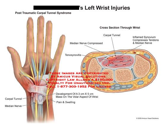 Hand Injury And Conditions  A Top And Cross
