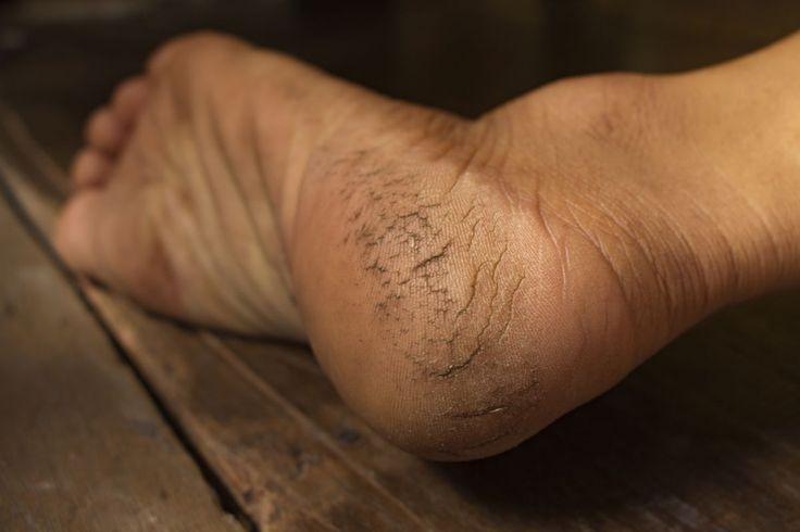Pękające pięty to nie tylko problem estetyczny, co w równym stopniu medyczny. Dlatego ważne jest leczenie zmian, oraz odpowiednia pielęgnacja mająca na celu zapobieganiu pękaniu pięt w przyszłości. Przyczyny pękania …